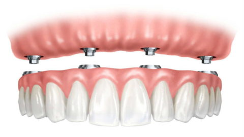Несъемные зубные протезы на зубных имплантах в Москве