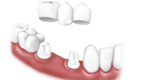 Мост или мостовидный протез на зубы