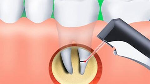 Гемисекция зуба в Москве