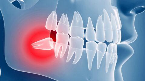 Что значит «зуб дистопирован» или «зуб ретенирован»