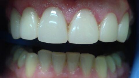 Эстетико-функциональное восстановление фронтальных зубов
